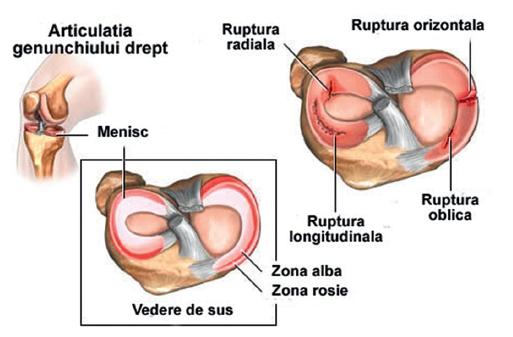 recuperare a leziunilor la genunchi