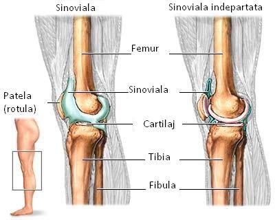 artrita cronică juvenilă a genunchiului)