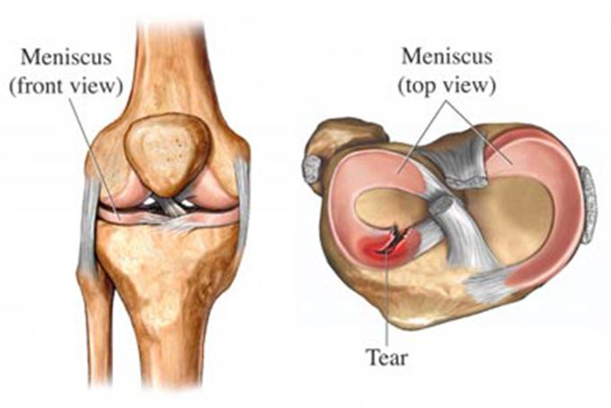 tratament pentru meniscul genunchiului)
