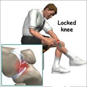 unde să tratați meniscul articulației genunchiului