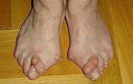 artrita psoriazică a degetelor de la picioare