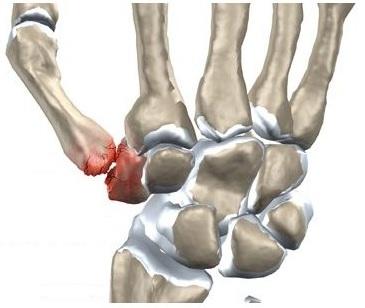 durere la atingerea unei articulații a degetului)