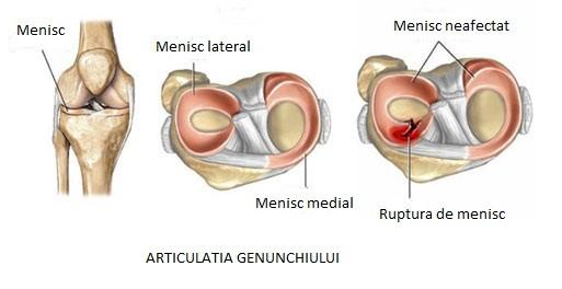 traumatism la meniscul genunchiului)