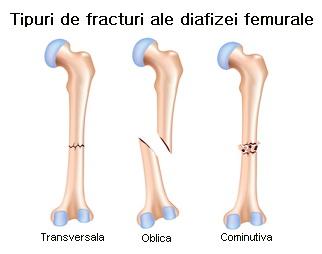 tratamentul fracturilor de șold
