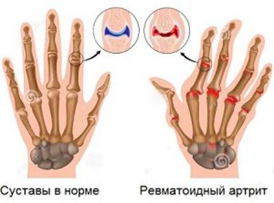 articulațiile rănite de la teraflex
