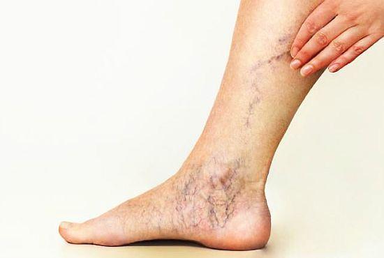 umflarea varicelor genunchiului
