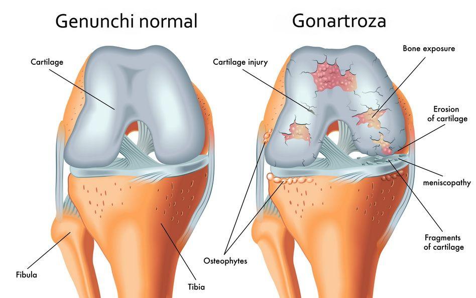 articulațiile genunchiului sunt foarte dureroase