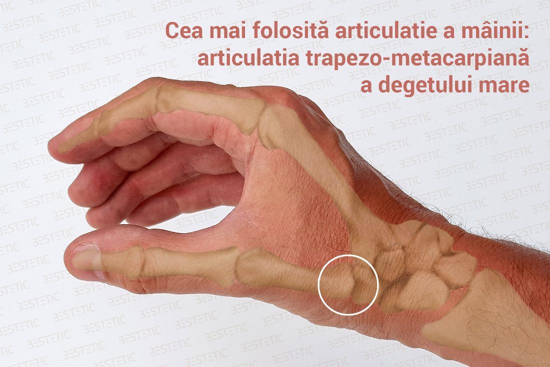 leziuni la nivelul articulațiilor degetului mare)