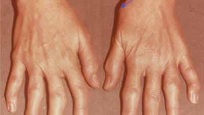durere când apăsați pe articulațiile degetelor)