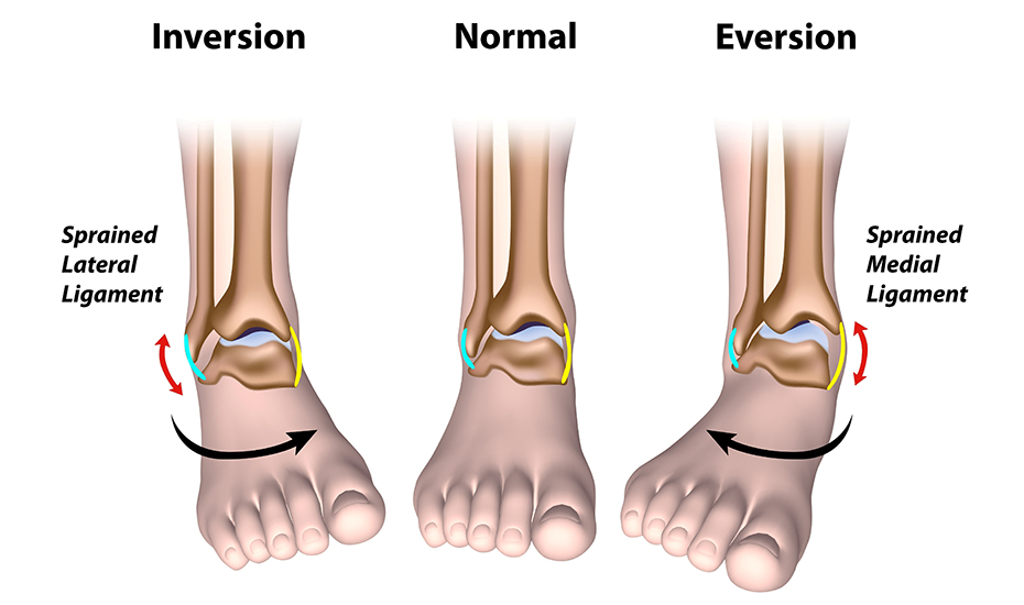 Dureri osoase la nivelul articulației piciorului - Dureri de genunchi la spate drept