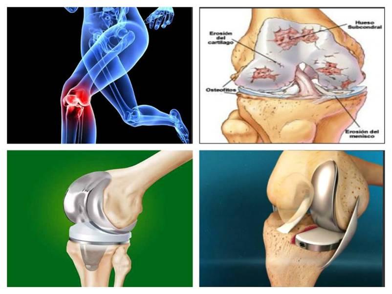 mecanism pentru dezvoltarea artrozei genunchiului