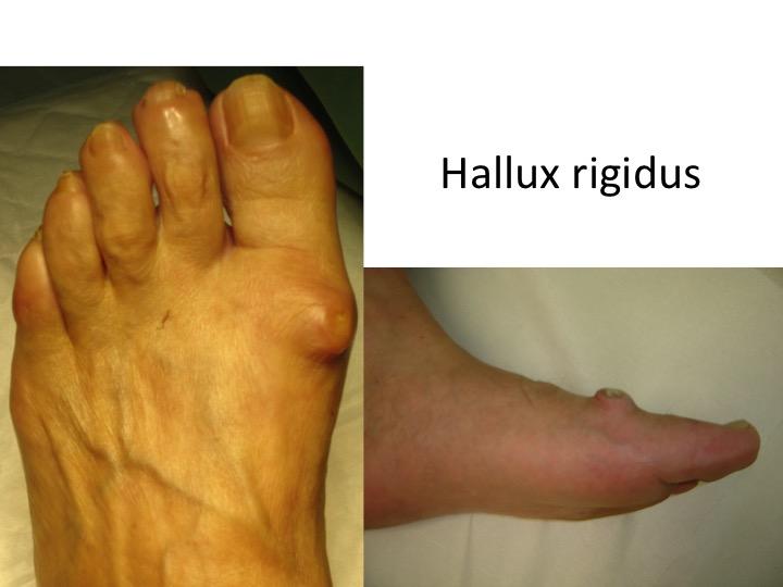 tratarea artrozei degetelor de la picioare