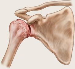 artroza articulației umărului de gradul II)
