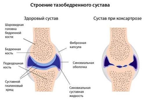 tratamentul coxartrozei articulației șoldului de 1 grad)