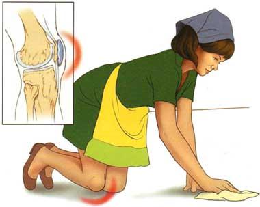bursită pe genunchi