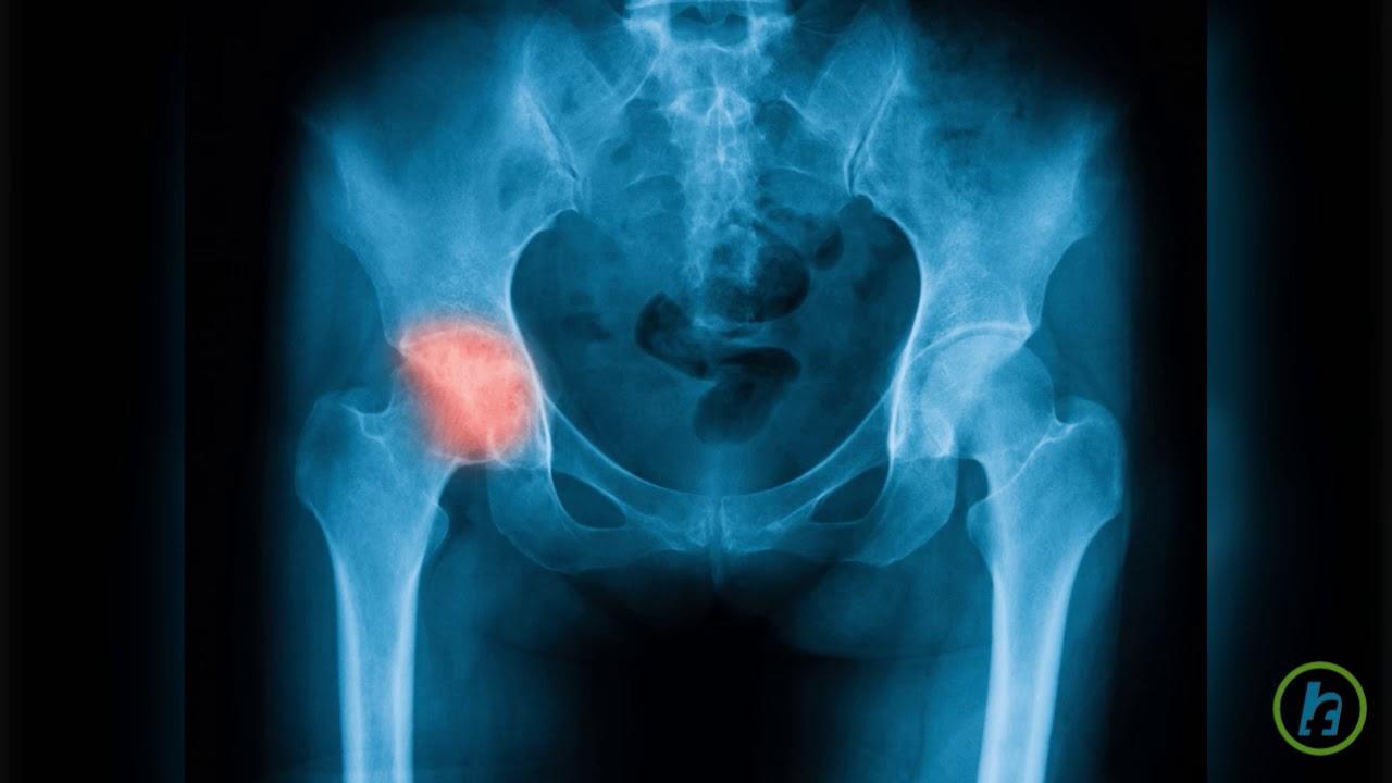 al treilea trimestru de durere în articulația șoldului)