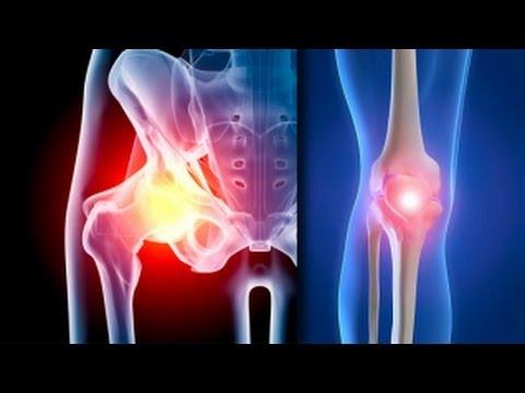 ameliorați inflamația articulației genunchiului)