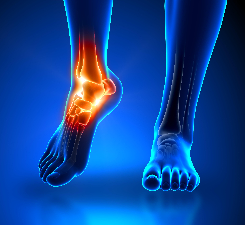 antecedente medicale glezna entorsa artroza tratament cu ulei de camfor