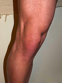 articulația genunchiului s-a prăbușit