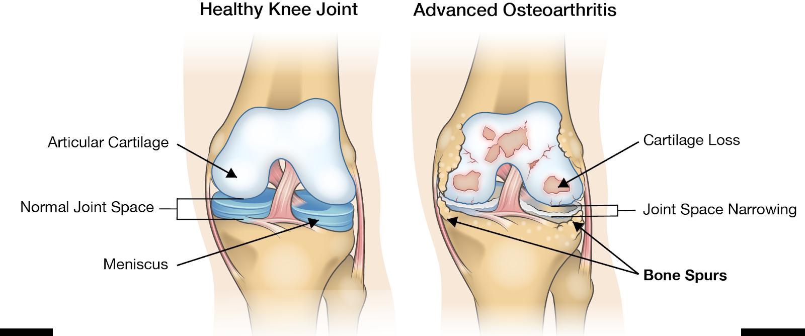 articulația iese din genunchi