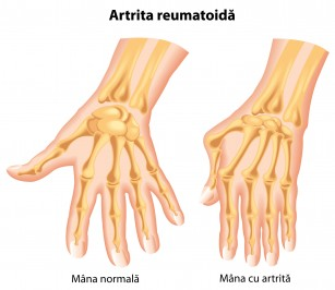Articulația inflamației degetelor mari, Mont (inflamație) la picior - interarti.ro