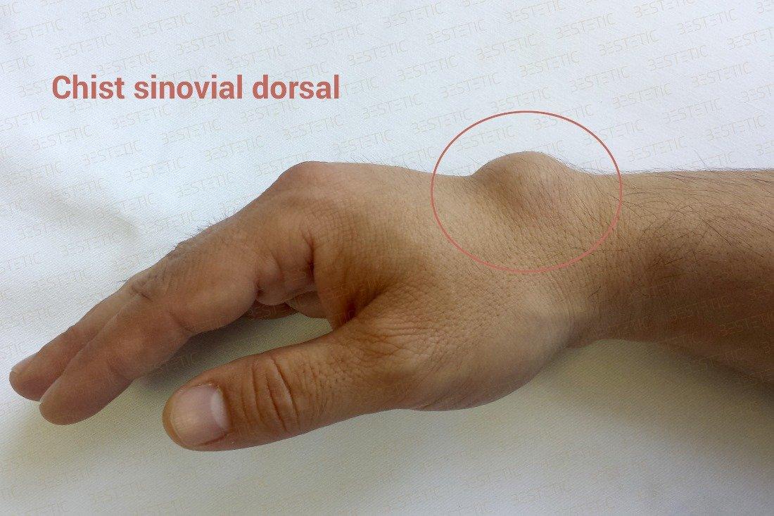 articulația pe deget este inflamată cum să tratezi