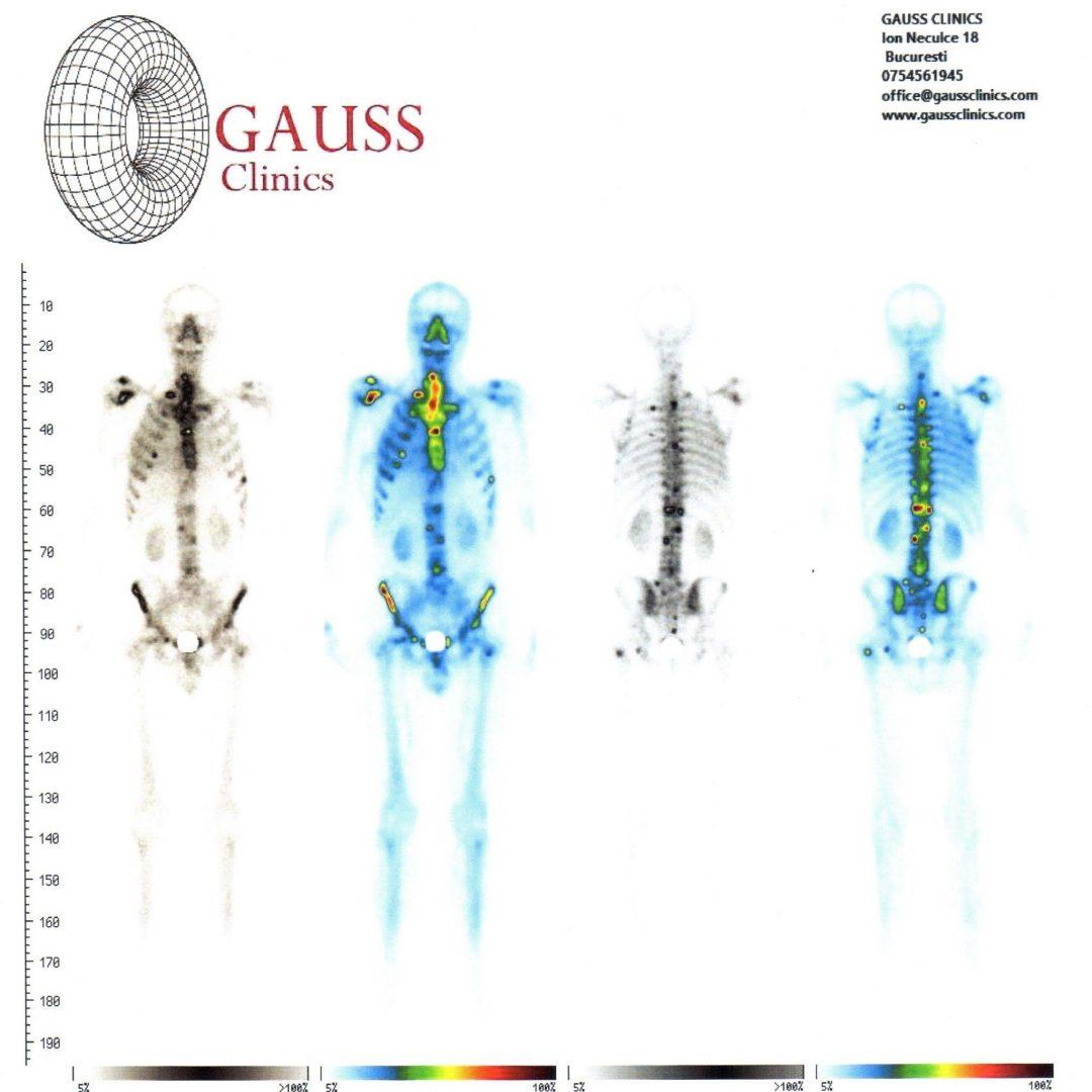 articulațiile din întregul corp sunt foarte dureroase durere de flexie la nivelul articulațiilor brațului