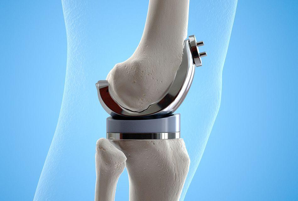 articulațiile genunchiului zguduie ce să facă