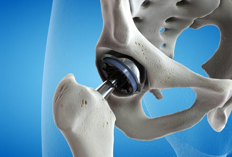 Articulațiile șoldului doare atunci când ghemuite