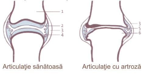 articulațiilor după durere furosemidă după 60 de ani au rănit articulațiile