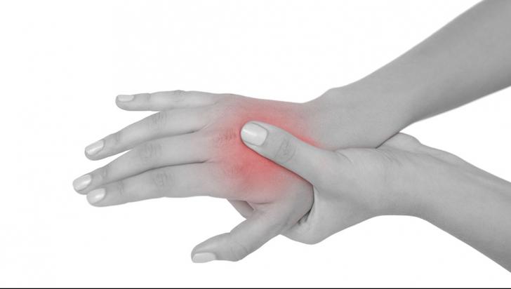artrita alergică cum să tratezi