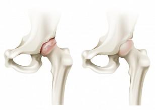 artrita artroza preparatelor de sold