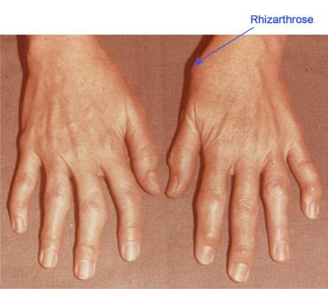 artrita degetului mijlociu al mâinii stângi)