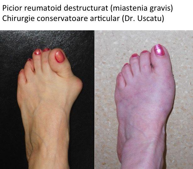 artrita reumatoidă a articulațiilor picioarelor)