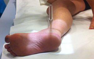 artroza a 1 tratament articulație metatarsofangiană a piciorului)