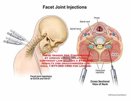 artroza articulațiilor necovertrale c5 c6