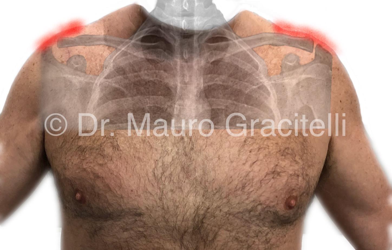 artroza deformantă a articulației clavicular-acromiale