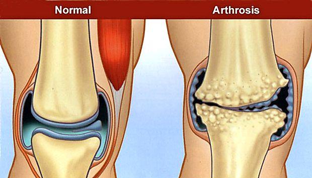 artroza fațetelor