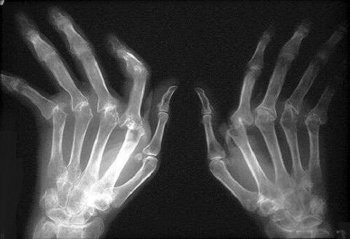 artroza și artrita tratamentului lor