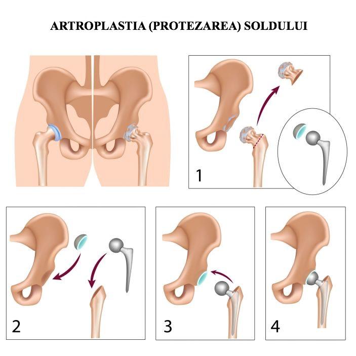 artroza laterală dreaptă a articulației șoldului)