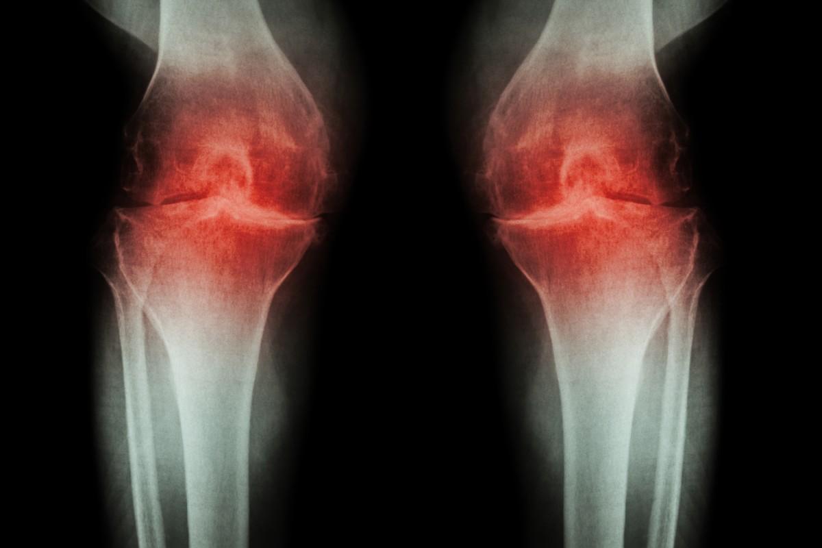 artroza tratamentului antebratului)