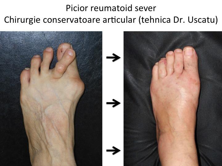artroza tratamentului chirurgical al piciorului
