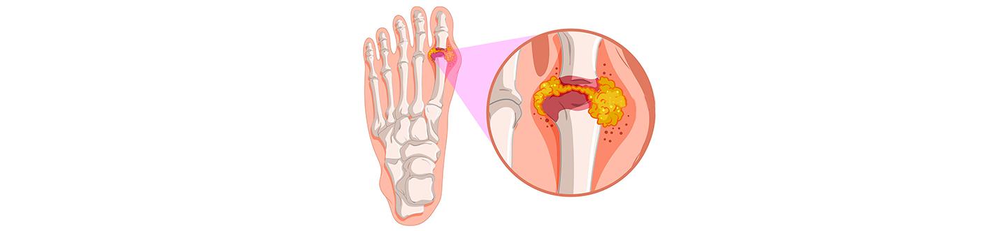 ateroscleroza bolii cotului)