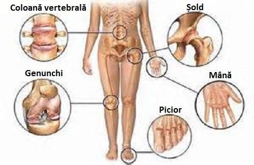 lista de calmante pentru durerile articulare