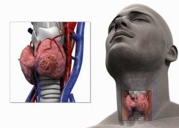 boala articulației tiroidiene)