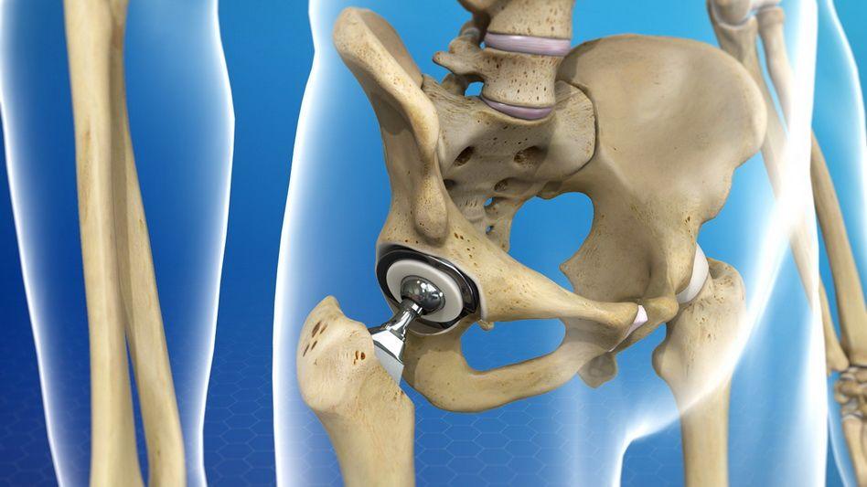 tratament dureros al articulației șoldului drept)