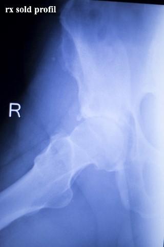 artroza blocului de șold)