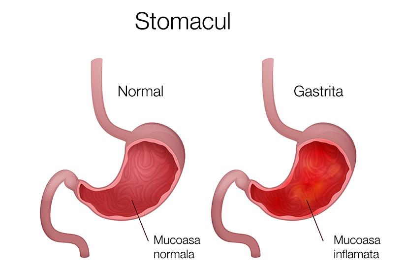 gastrită și dureri articulare