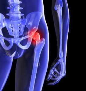 durere în articulația șoldului din exterior)