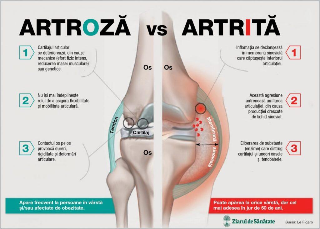 artroza brahială a primei etape
